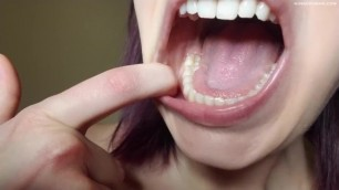 Dental Mouth Exploration Preview